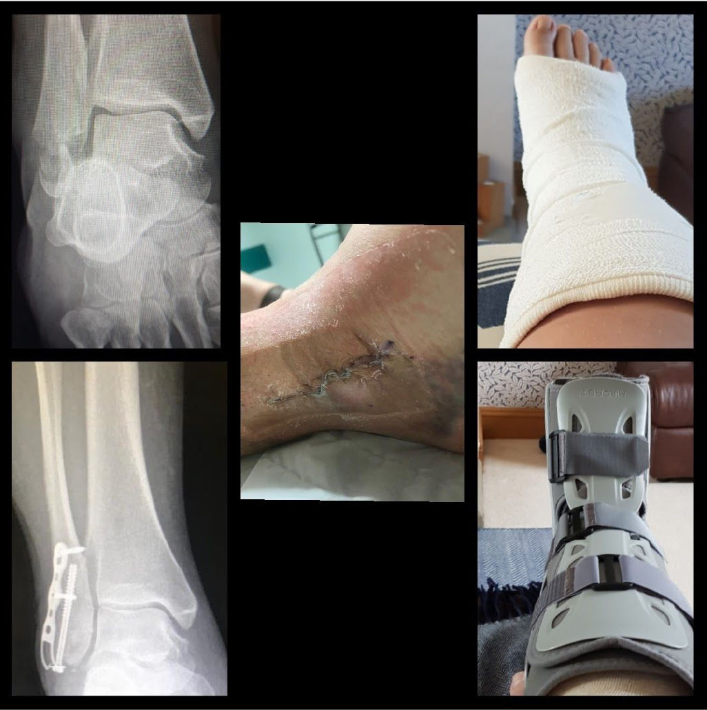 Gillian badly broke her ankle in 2019 she snapped off the bottom of her fibula and shattered bones around her ankle joint leaving it out of alignment and twisted.